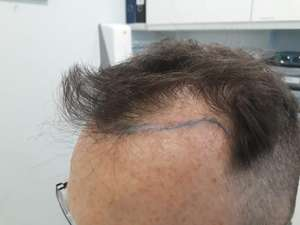 Hair Transplant – Duplicate, Wimpole Clinic