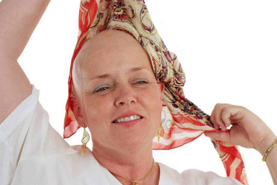 Women And Hair Loss