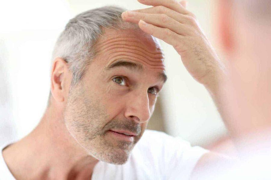 A-mens-balding-dilemma
