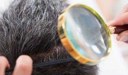 Avoiding Hair Transplant Side Effects