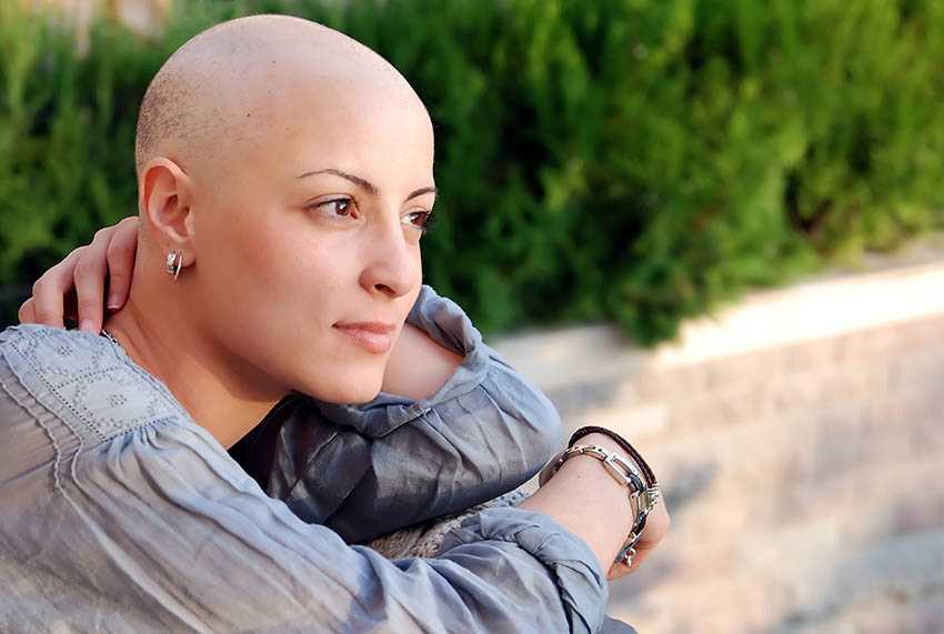 Chemotherapy-hair-loss-special-cancer