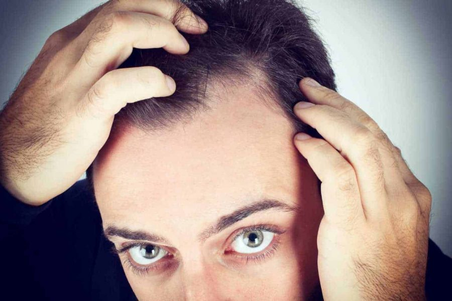 3-hair-loss-symptoms-you-shouldn't-ignore