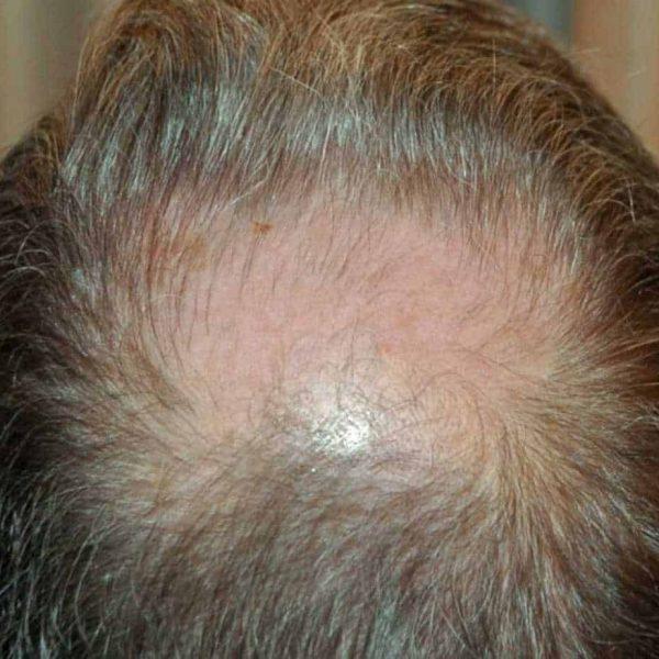 Wimpole Clinic: Hair Transplant Clinic, Marylebone London
