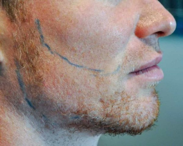 Beard Implants Before