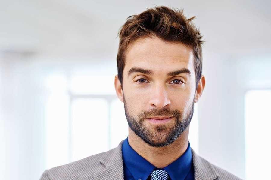 beard-transplant-ft