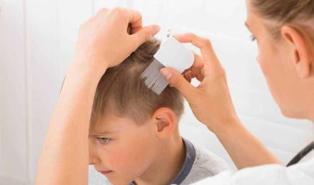 Childhood Hair Losses: What Are The Causes?