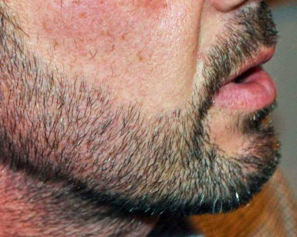 Facial Hair Transplant After