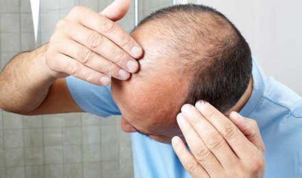 Male-pattern-baldness-linked-to-prostate-cancer-new-findings