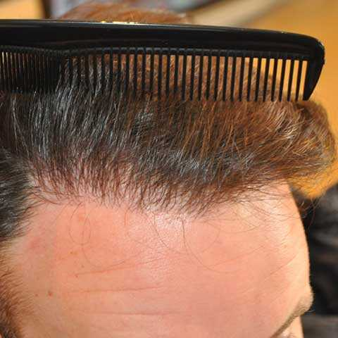 Where-does-the-hair-come-from-for-hair-transplants