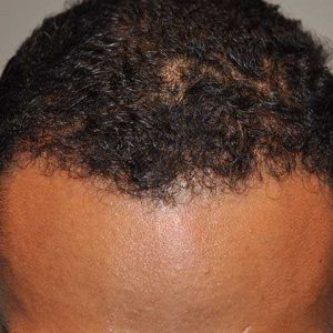 Hair-transplant-after-2