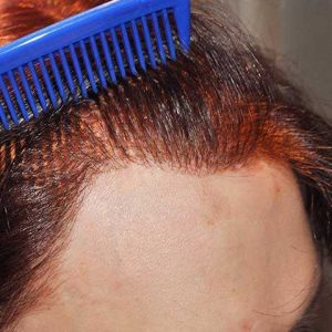 Hair-transplant-after-20