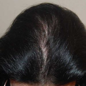 Hair-transplant-after-22