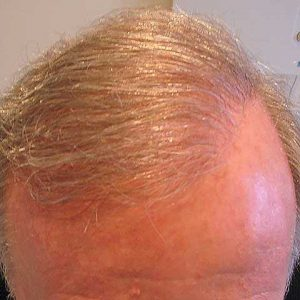 Hair-transplant-after-6