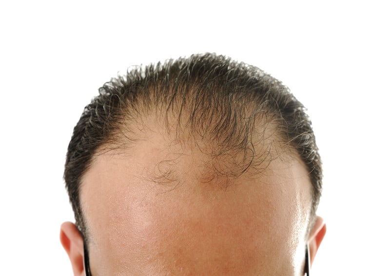 Hair Transplant Average Cost