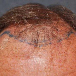 Hair-transplant-before-10