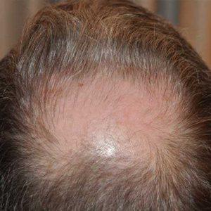 Hair-transplant-before-13