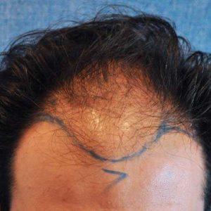 Hair-transplant-before-3