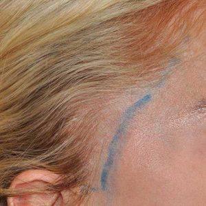 Hair-transplant-before-8