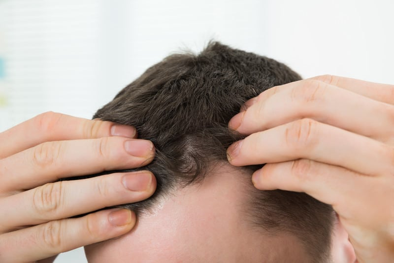 Hair Transplant Problems