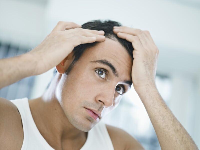 Man Checking Hair Loss