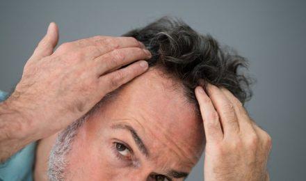 Man Checking Hair Transplant