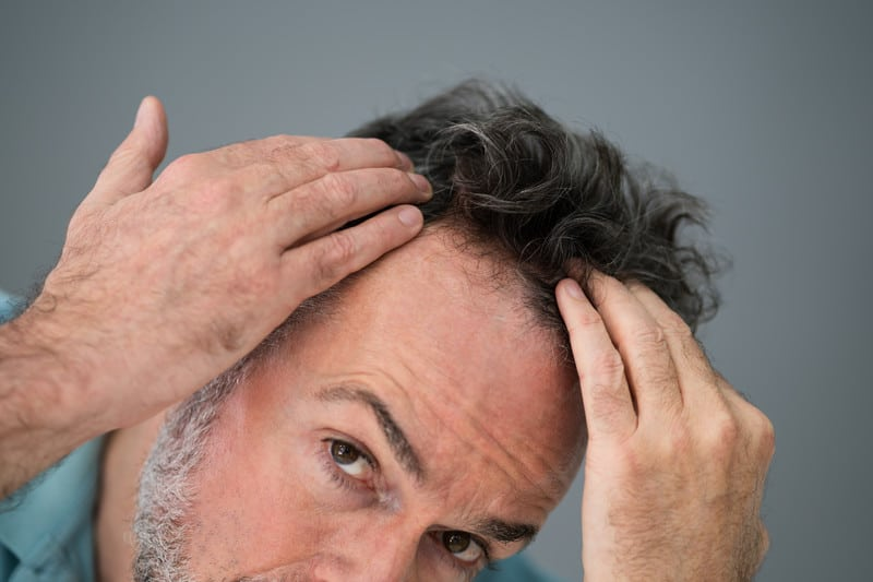 Man Checking Hair Transplant