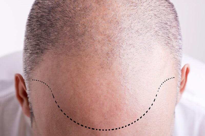 Man Preparing For A Hair Transplant