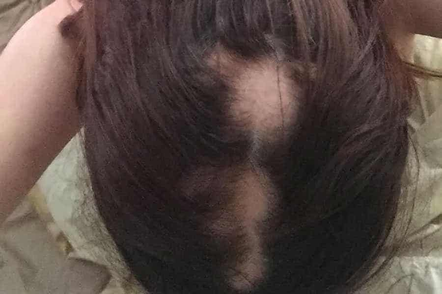 Grace-traction-alopecia