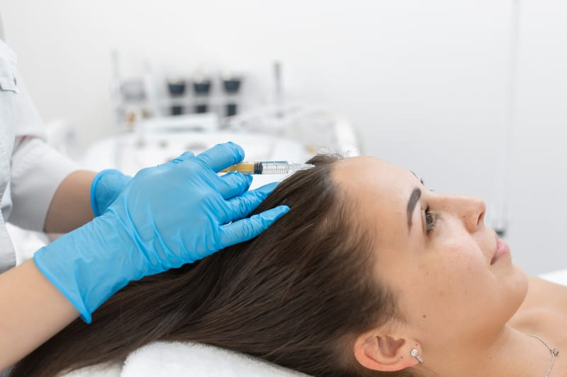 PRP Hair Therapy Injections