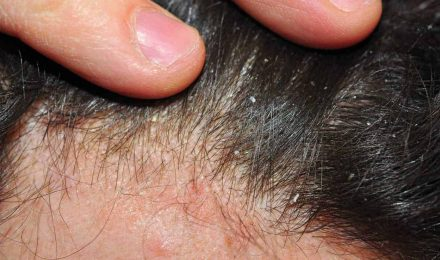 Scalp Psoriasis – Diagnosis And Treatments