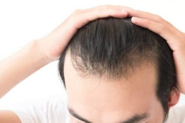 Wimpole Clinic Guide To Thinning Hair