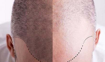 How-can-scalp-micro-pigmentation-SMP-create-a-cleaner-more-stylish-look-for-shaved-heads