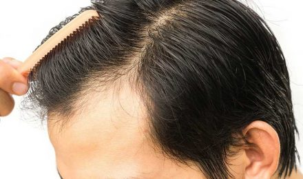 Recovering From Hair-transplant-surgery-what-to-expect