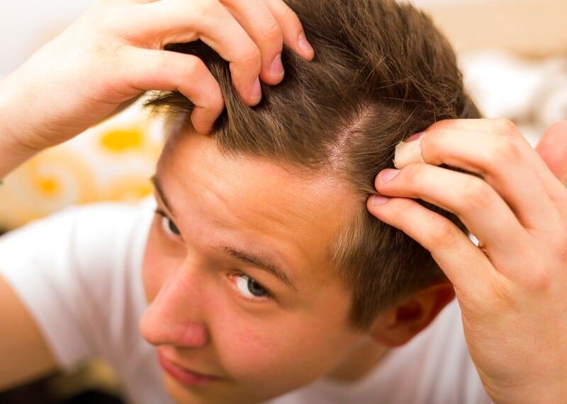 Young Man Checking Hair Loss